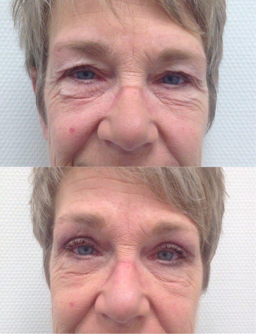 Onder ooglidcorrectie, resultaat van een onder ooglid correctie, onder ooglid ervaring, voor en na foto onder correctie, onder oogleden correctie foto