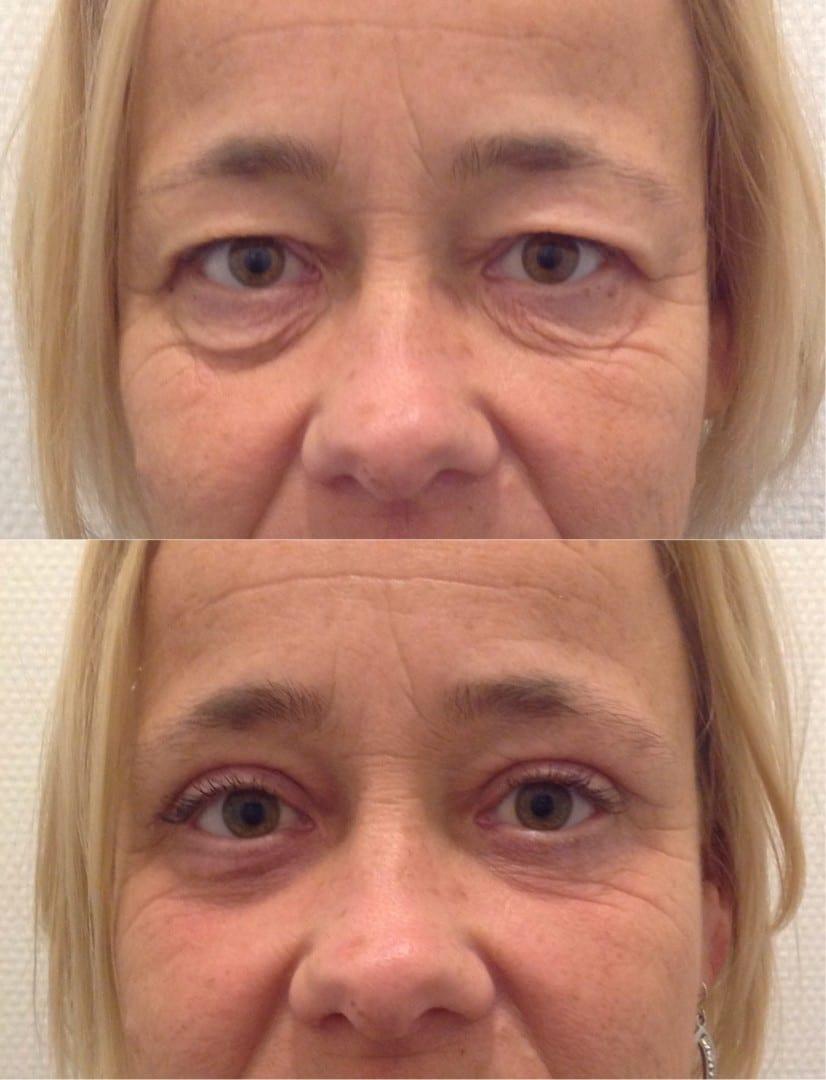 boven ooglid correctie onder ooglid correctie ooglift blepharoplastiek, hangende oogleden, ooglidcorrectie, boven en onderooglidcorrectie, wallen onder de ogen verwijderen en weghalen