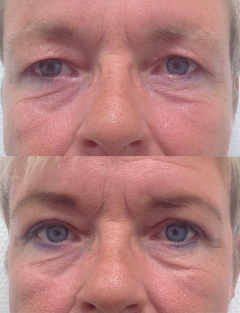 resultaat van een ooglidcorrectie, ooglidcorrectie ervaring, voor en na foto ooglidcorrectie, voor na foto ooglid correctie, ooglift voor na foto