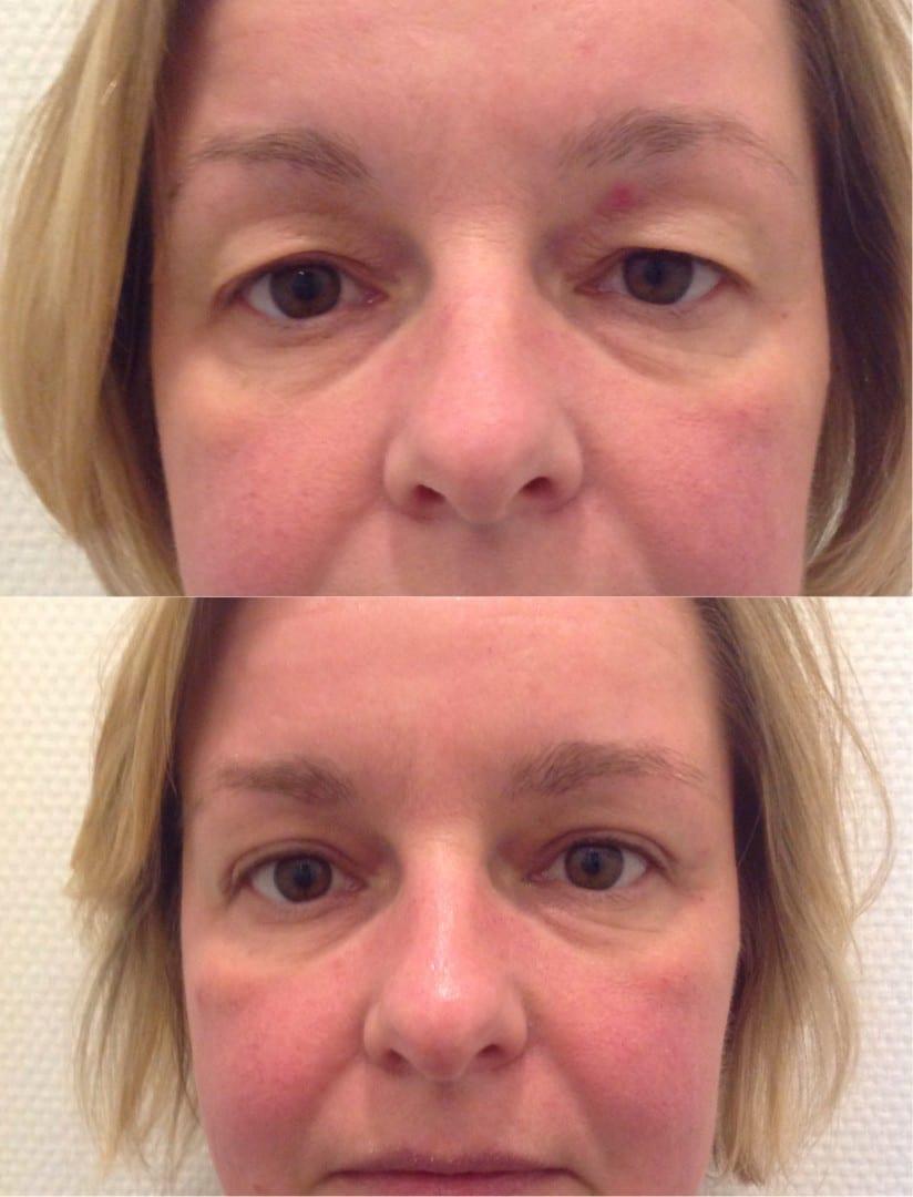 ooglidcorrectie, ooglid correctie, boven ooglidcorrectie, hangende oogleden, ervaring ooglidcorrectie, vergoeding ooglidcorrectie, blepharoplastiek