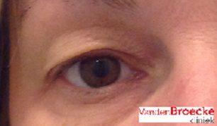 Client met fors huidsurplus