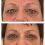 Close-up van ogen voor en na een ooglidcorrectie