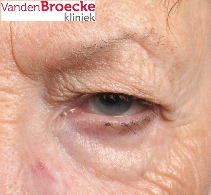 hangend ooglid, hangende oogleden, blepharoplastiek, ooglidcorrectie, bovenooglidcorrectie, korrectie oogleden, operatie ooglid, klachten hangende oogleden