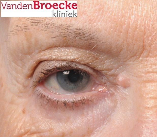 hangend ooglid, hangende oogleden, blepharoplastiek, ooglidcorrectie, bovenooglidcorrectie, korrectie oogleden, operatie ooglid