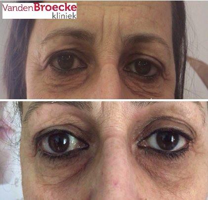 Plasmage plexr onder ooglid correctie, plasmage wallen onder de ogen verwijderen