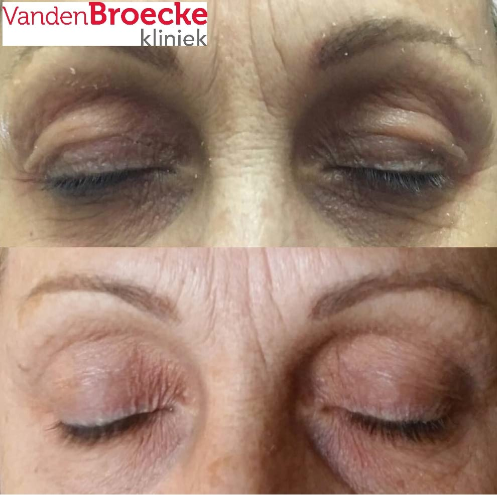 Plasmage plexr ooglid correctie plasmage ooglid verstrakking