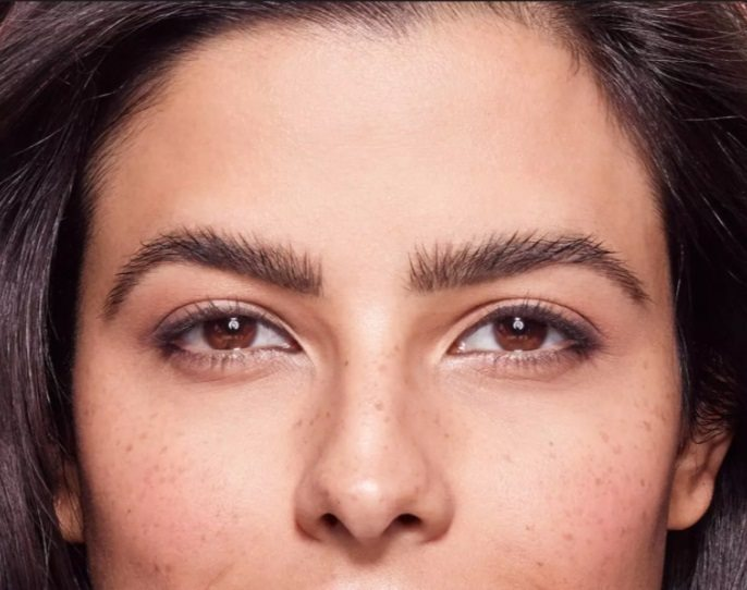 Wenkbrauwlift browlift of bovenooglidcorrectie hangende oogleden